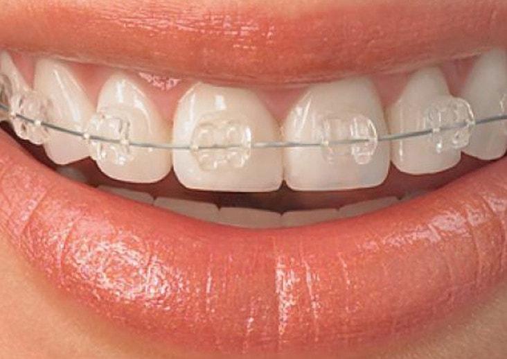Ortodonzia Vasto