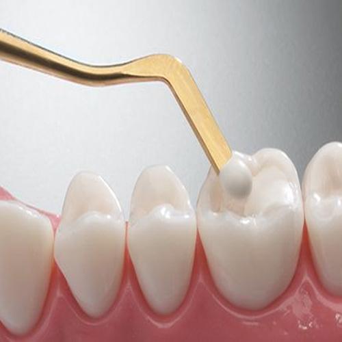 Conservativa - Endodonzia Vasto