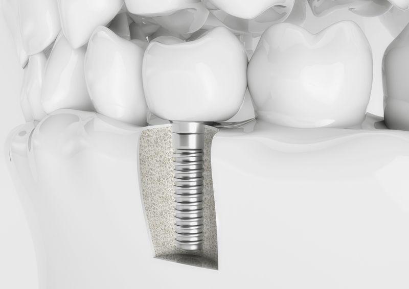 Implantologia Vasto